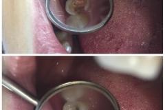 Bolesti zuba 1
