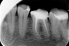 Endodoncija 1