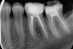 Endodoncija 2