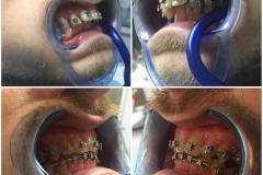 Ortodoncija 1